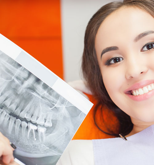 Woman showing dental x ray