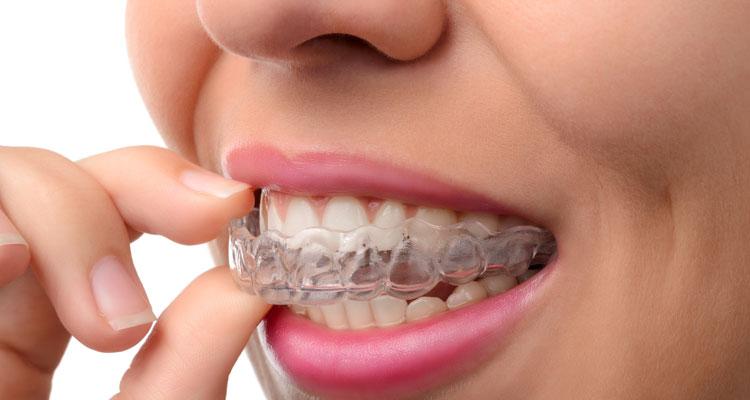 Woman wearing invisalign braces