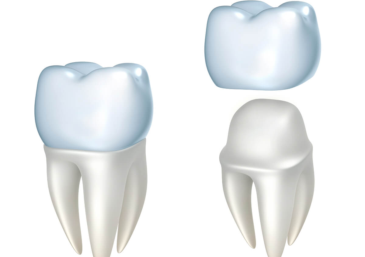 Invest in your smile, confidence, and health: Quality crowns for damaged teeth